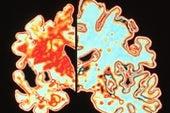 Estudiar el alzhéimer en sus etapas tempranas es clave para hallar una cura