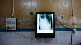 Nuevo análisis de sangre mejora diagnóstico de la tuberculosis