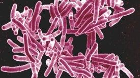 Una terapia breve con dos fármacos ayuda a los niños con tuberculosis latente