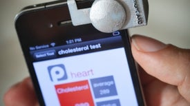 Accesorios convierten al teléfono celular en un detector de enfermedades