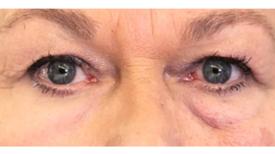 'Spanx' para la cara: un polímero rejuvenece la piel envejecida