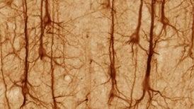 Cómo una curiosa dolencia resolvió un misterio de la neurociencia