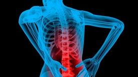 Desaconsejan automedicarse ante el dolor de espalda crónico