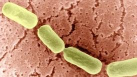 Hallan por primera vez una proteína similar a un prión en una bacteria