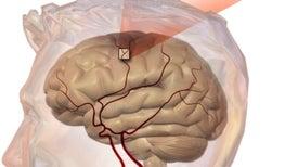 En personas con educación superior, hay una relación entre olvidos y sufrir un accidente cerebrovascular