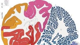 Mapa del cerebro humano recibe una audaz actualización