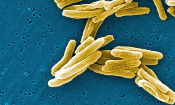 La tuberculosis se acerca al sida como la principal causa de muerte por enfermedades infecciosas, según la OMS