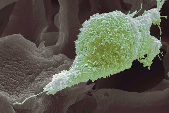 Las células cancerígenas no pueden proliferar e invadir a la vez