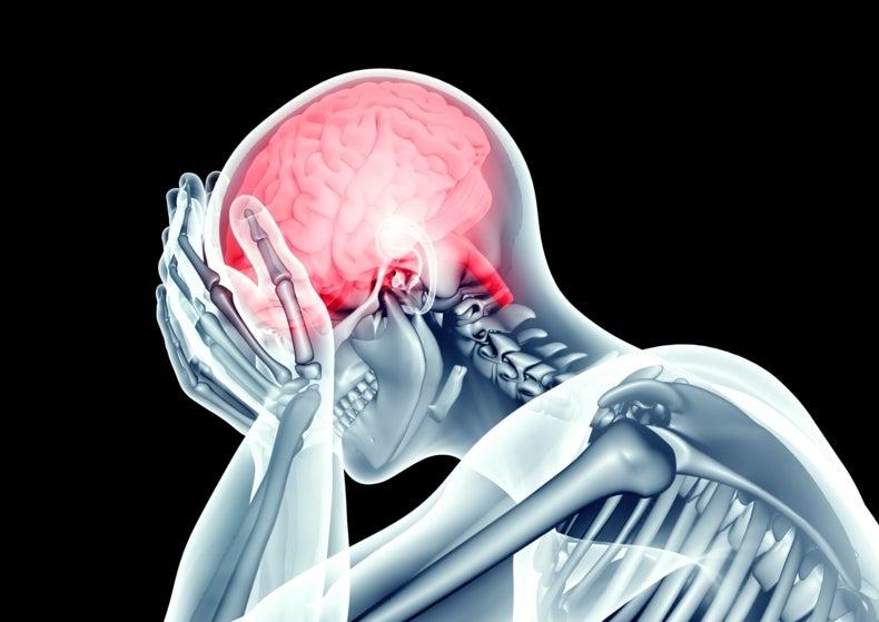 Hinchazón cerebral días después de una conmoción cerebral