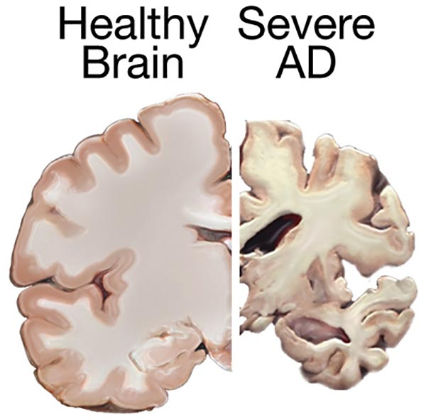 healthy brain vs. AD brain