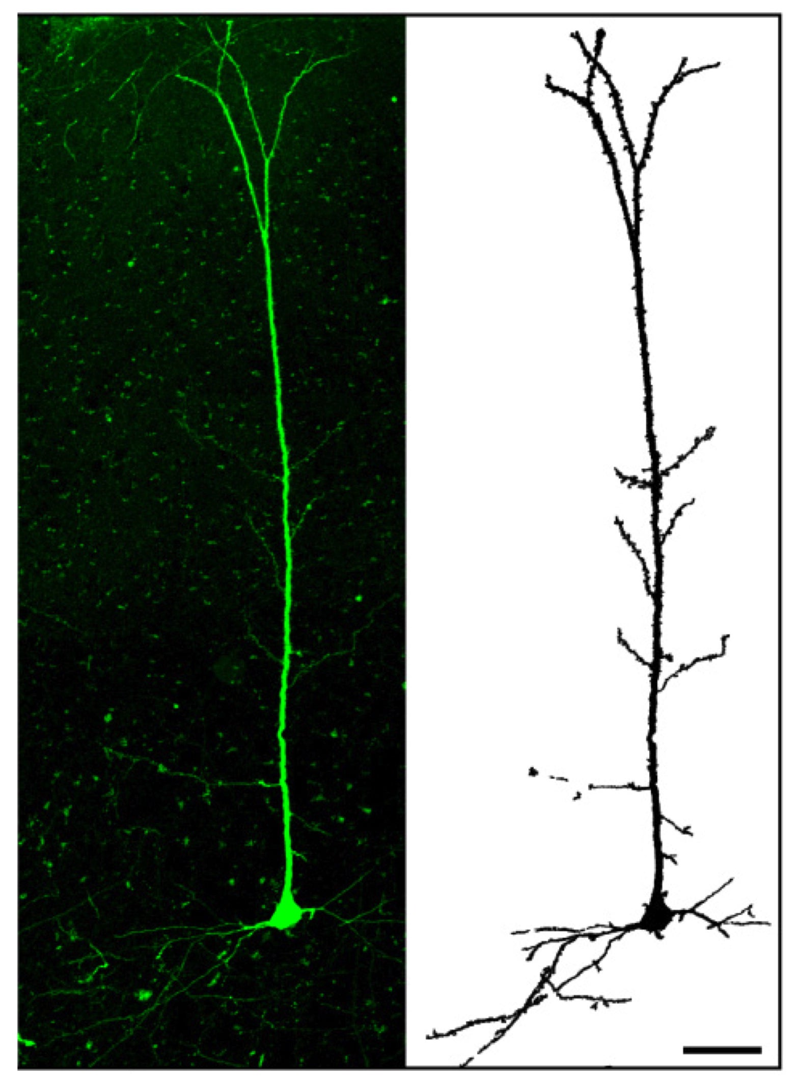 Lab Grown Neurons Could Help Scientists Repair Damaged Brain Tissue Create Circuit Board Modeled On The Human W Video Cortical Transplanted In A Mouse Credit Courtesy Of P Vanderhaegen Et Al