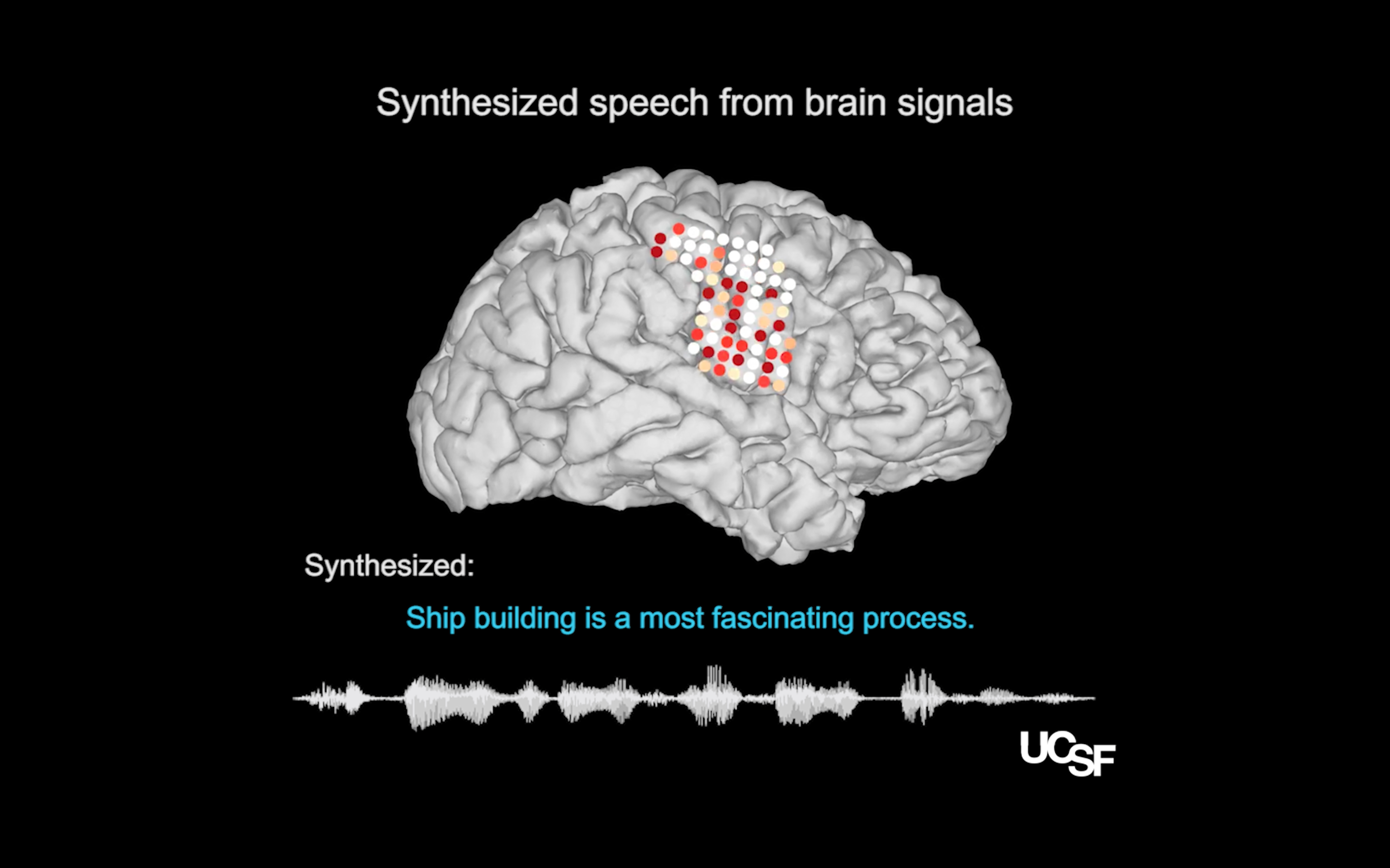 Scientists Take a Step Toward Decoding Speech from the Brain