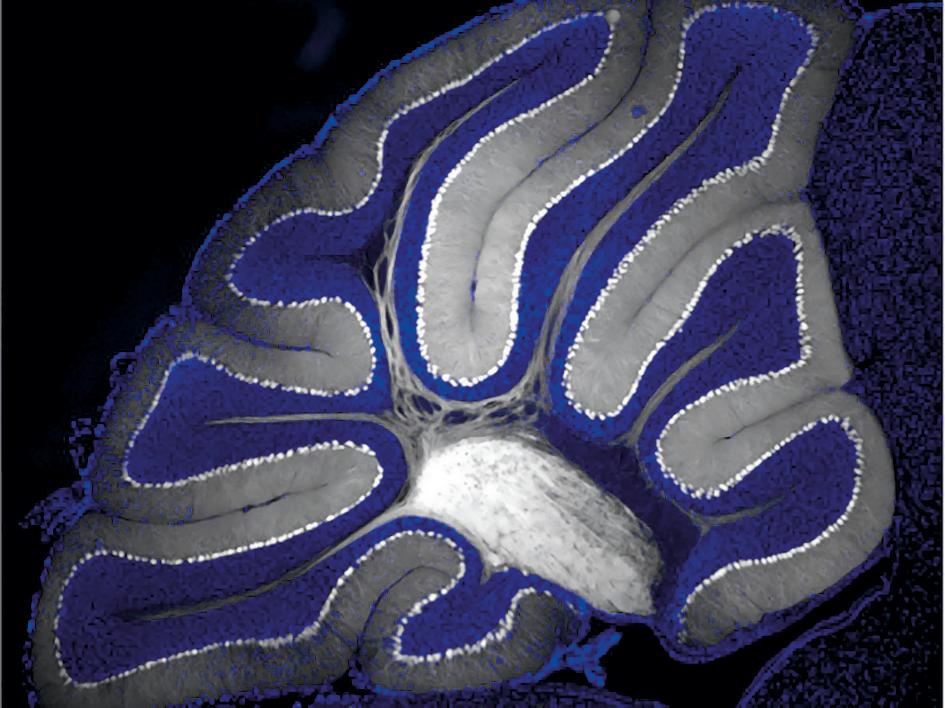Gene Therapy Targets Epilepsy