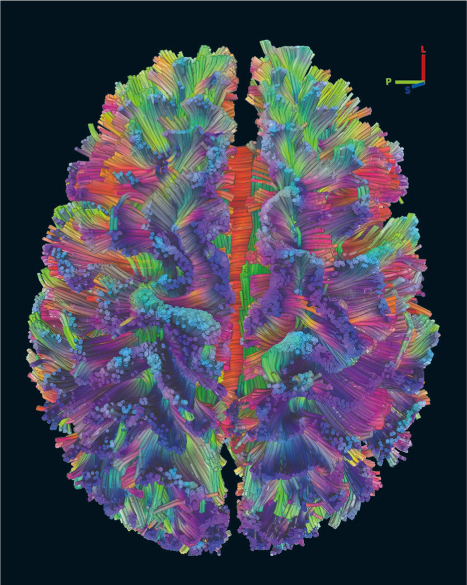 How the Mind Emerges from the Brain's Complex Networks