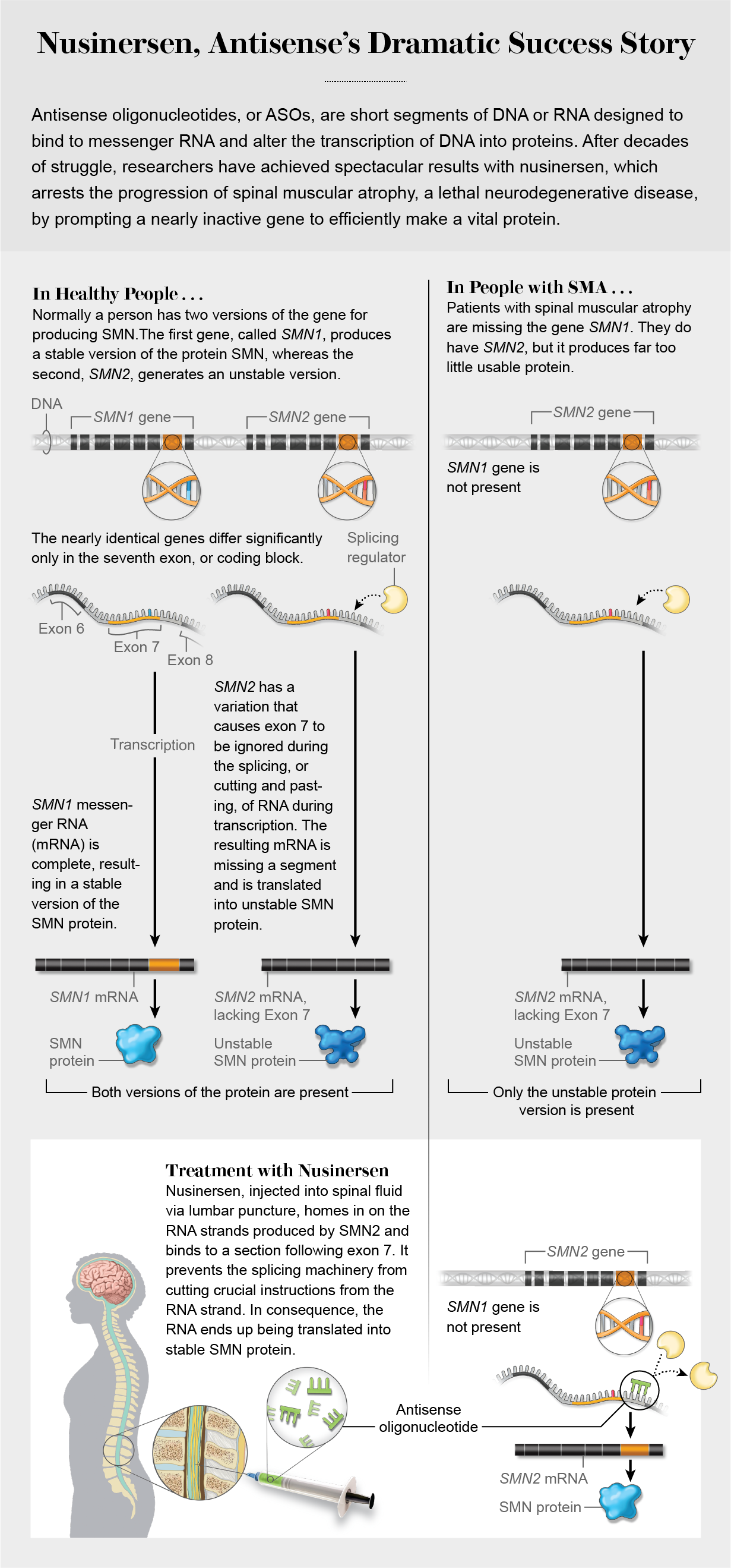 Graphic shows why SMN protein production goes awry in people with spinal muscular atrophy and how nusinerson (an antisense oligonucleotide therapy) results in stable SMN