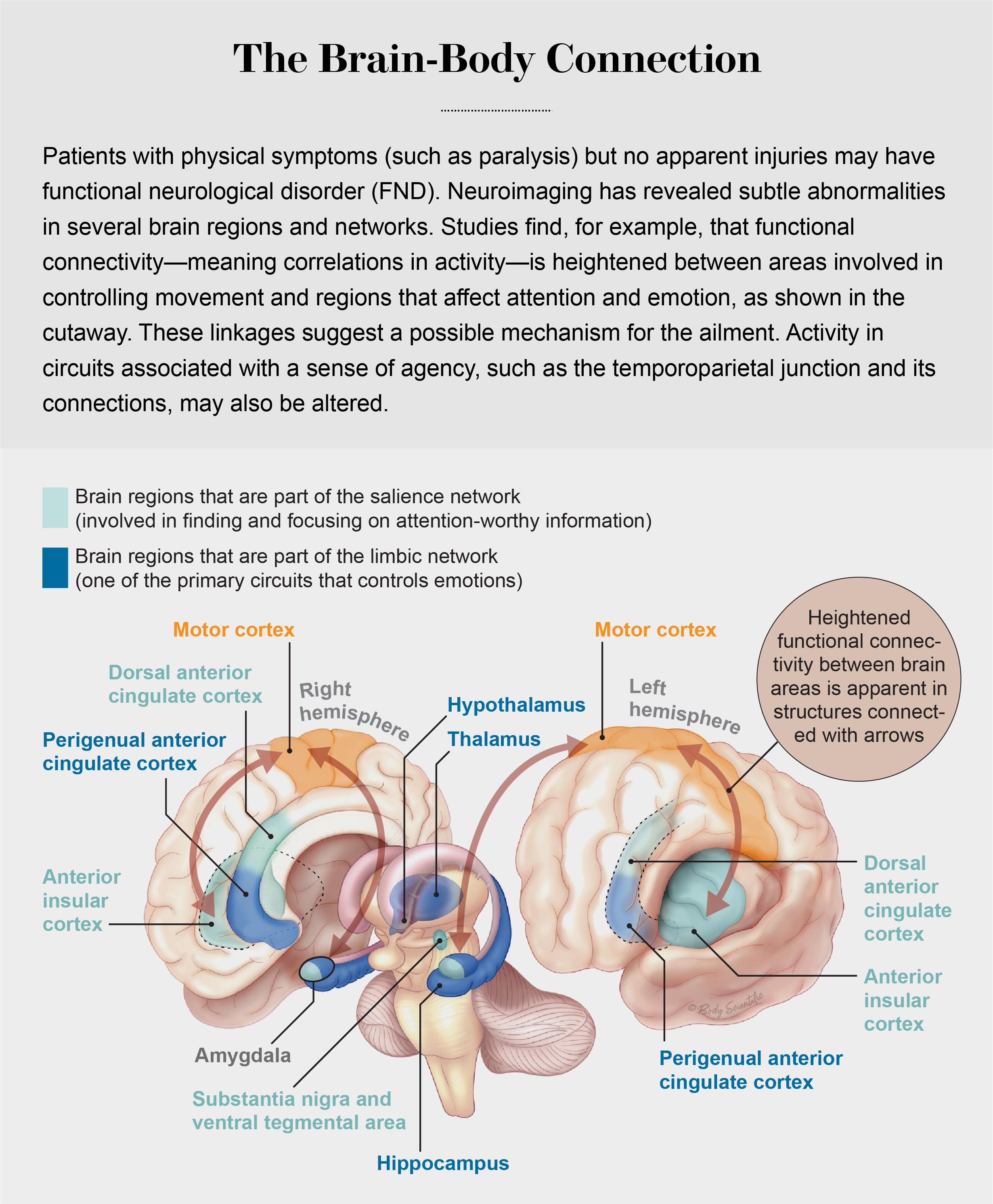 Brain diagram of FND patients