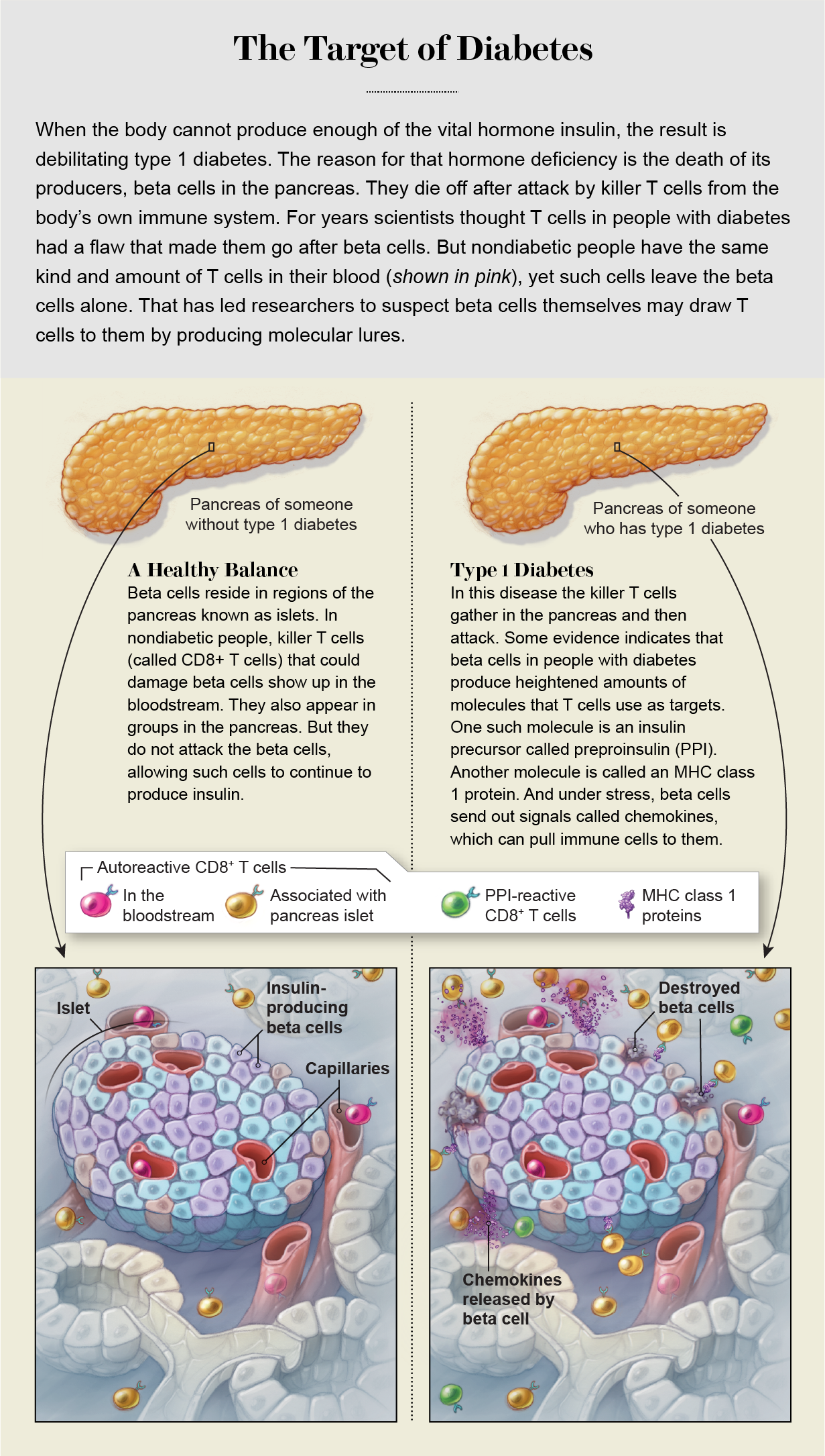 Graphic compares interactions of beta cells and killer T cells in pancreases of people with and without type 1 diabetes.