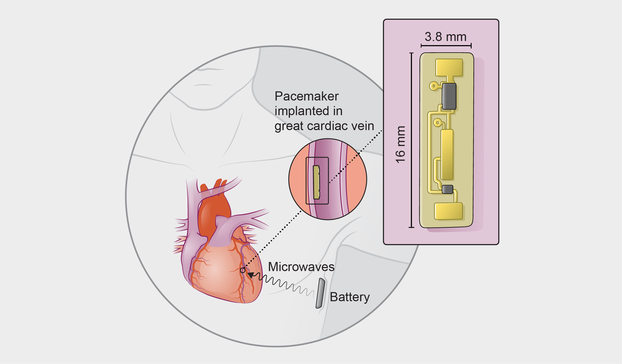 saw0917Adva31_Desktop new wireless pacemaker could prevent common complications