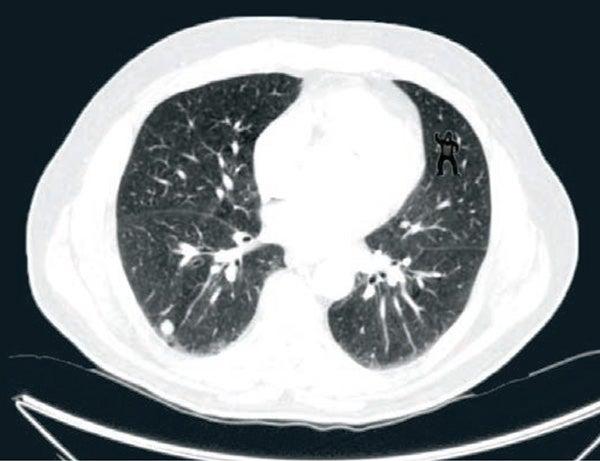 radiologis's oversight