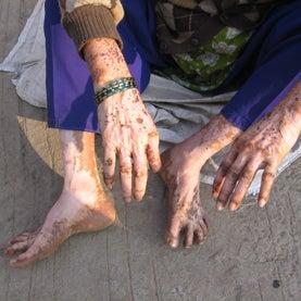pesticide-skin-problems
