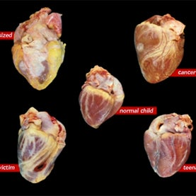hearts, autopsy, pathologist