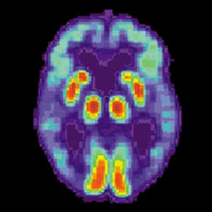 alzheimer's has new genetic links
