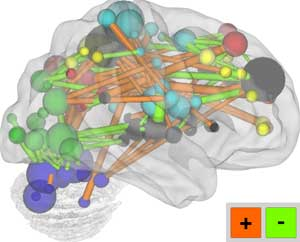 brain network longer connections in adult