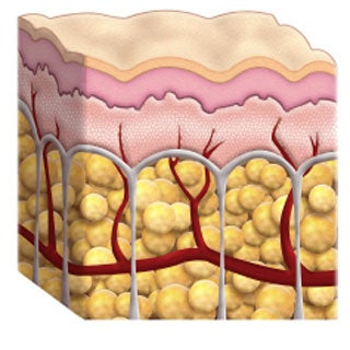 cellulite skin cross section illutration diagrom
