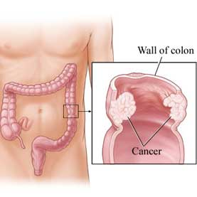 colon diagram