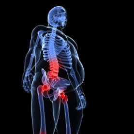 x-ray obese joint pain