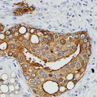prostate cancer shows presence of virus