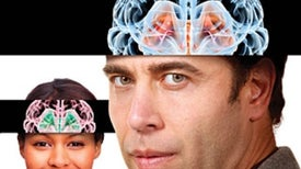 What Does a Smart Brain Look Like?: Inner Views Show How We Think
