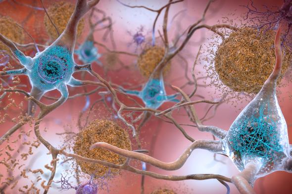 Reassessment of Alzheimer's Drug Raises Hope--and Concerns