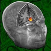 Brain Scans Reveal That Revenge Is Sweet