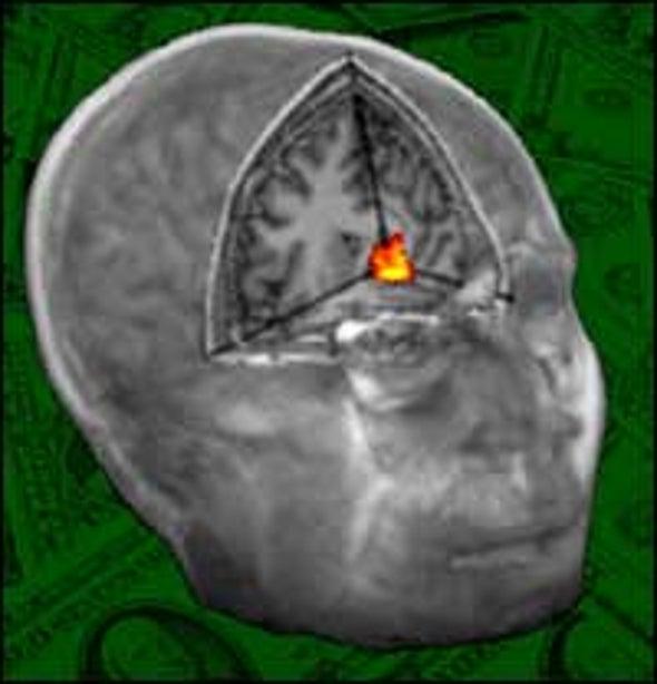 Brain Scans Reveal That Revenge Is Sweet