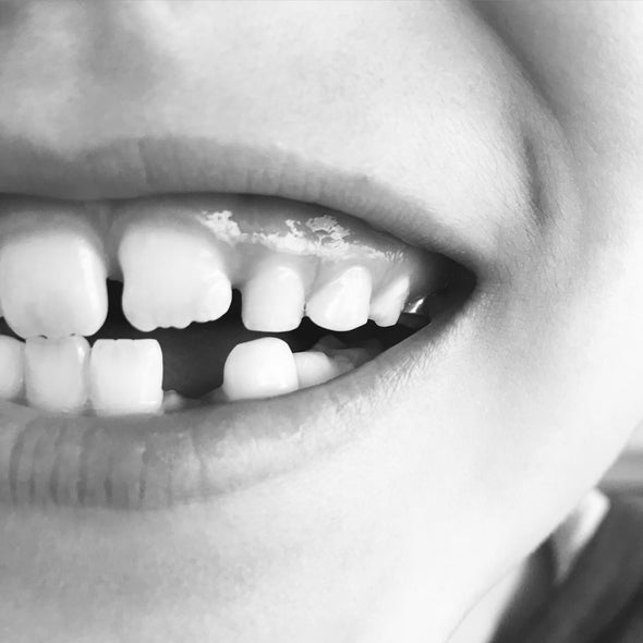 In Teeth, Markers of Disease