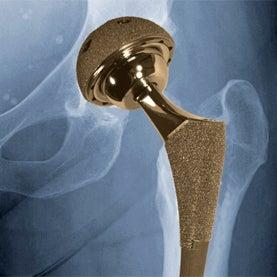 FDA, hip implant, surgical mesh, heart valve rings, defibrilator leads