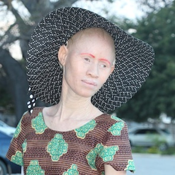 Witchcraft Trade, Skin Cancer Pose Serious Threats to Albinos in Tanzania