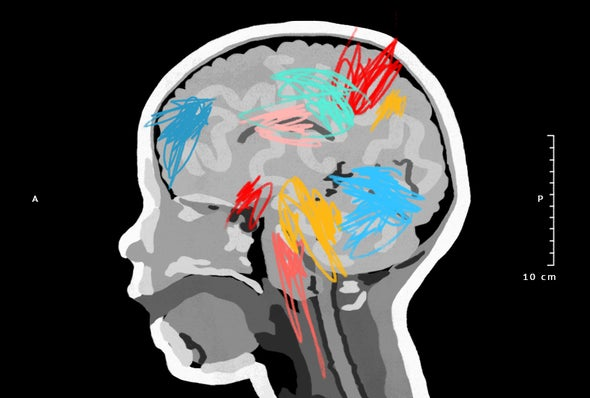 Excess Brain Fluid May Forecast Autism >> Baby Siblings Could Hold Clues To Autism Diagnosis Scientific American