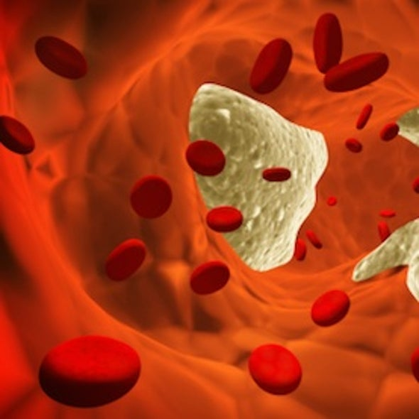 Doubts Emerge on the Value of Very Low Cholesterol Levels