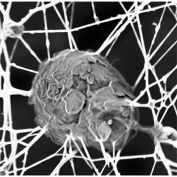 Nanotech to Regrow Cartilage and Soothe Aching Knees