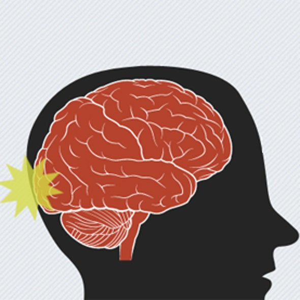 Inside Story: What Happens When Brain Hits Skull
