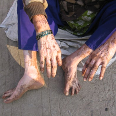 World's 10 Worst Toxic Pollution Problems [Slide Show]