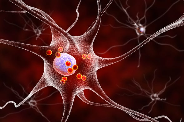 Mustering a Cell's Internal Defenses Might Hold Potential for New Parkinson's Disease Therapies