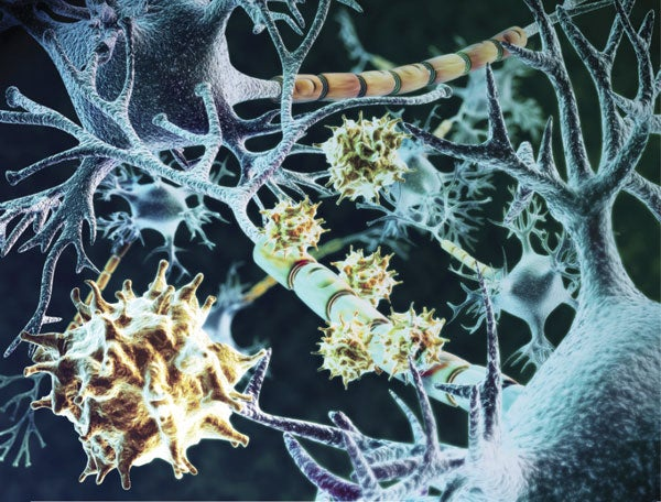 New Drug Is First to Treat Progressive Multiple Sclerosis