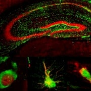 Bystander Stem Cells Keep Original Neurons Humming, Restore Memory