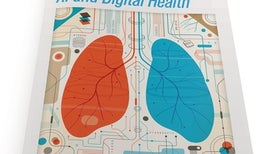 Digital health: Smartphone-based monitoring of multiple sclerosis using Floodlight