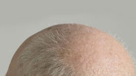 "Treating Baldness is ""Not Like Growing Grass"""