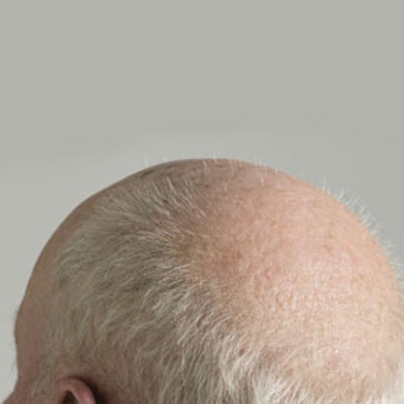 """Treating Baldness is """"Not Like Growing Grass"""""""