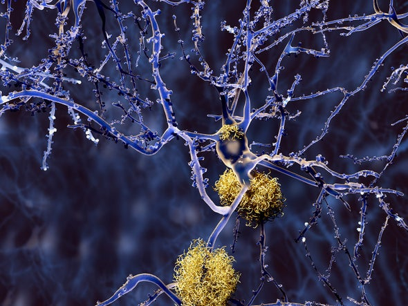 Hopes Dashed as Alzheimer's Drug Fails in Late-Stage Trial